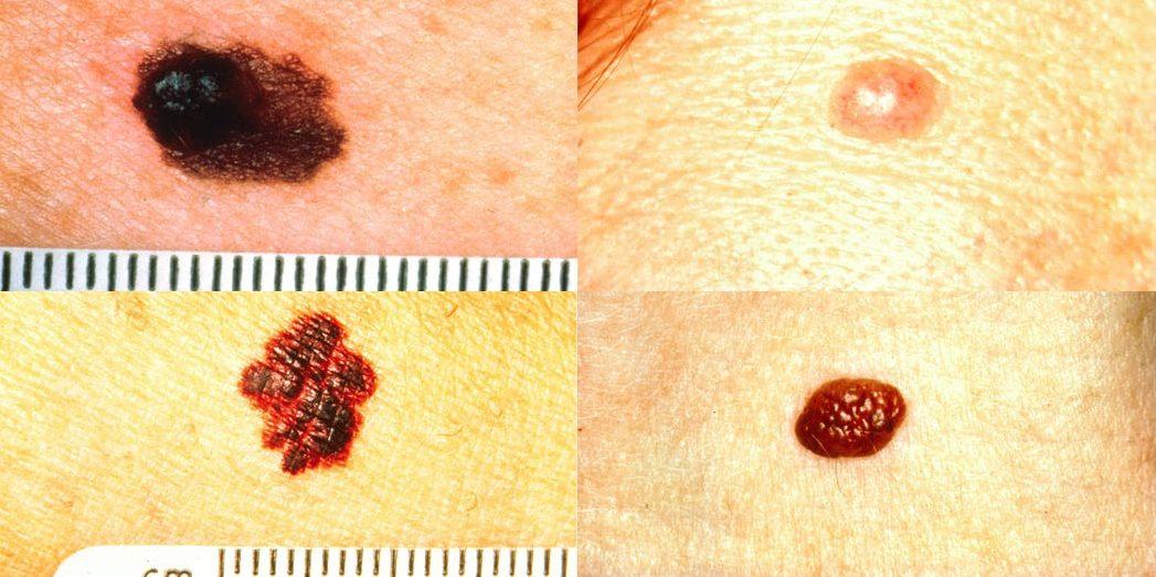 Что такое меланома кожи и ее последствия