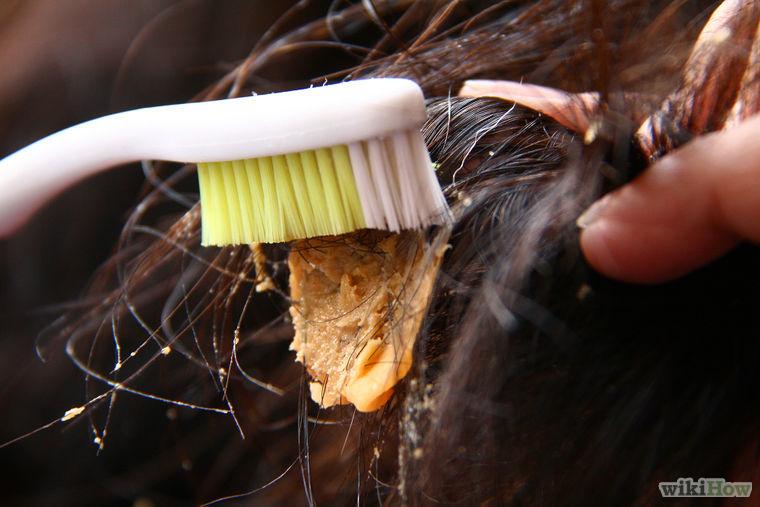 Жвчка попала в волосы