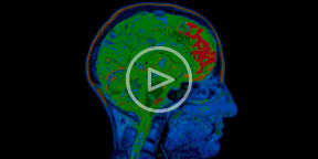 Как своим мозгом контролировать чью-то руку, или Чудеса нейробиологии
