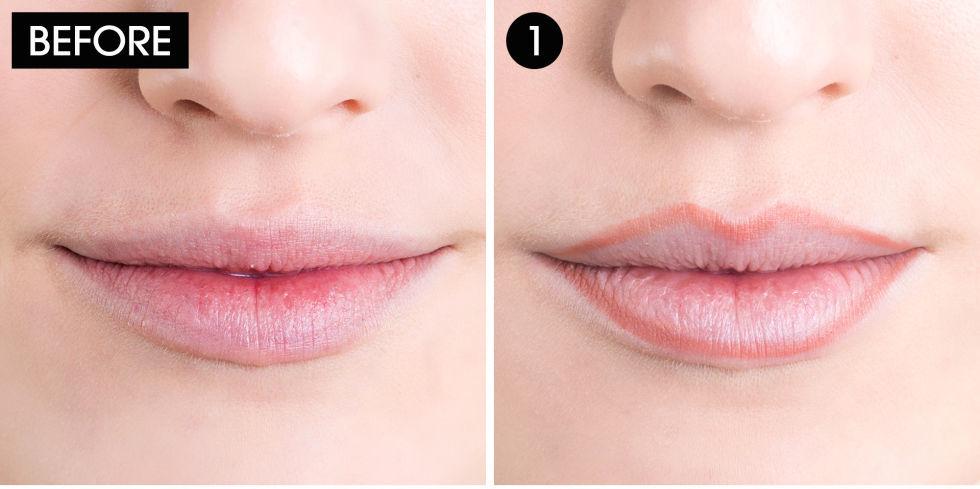 Белые точки на губах: причины, что делать, есть