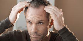 5 причин выпадения волос, о которых вы могли не задумываться