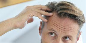 Как предотвратить выпадение волос: 4 способа, проверенных медициной
