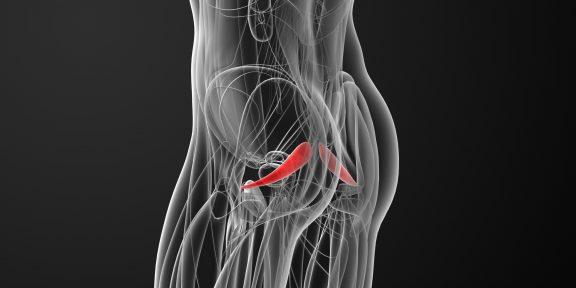 Что такое синдром грушевидной мышцы и как от него избавиться