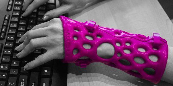 ActivArmor — альтернатива медицинскому гипсу, напечатанная на 3D-принтере