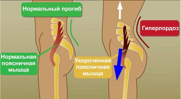 продольный шпагат: поясничная мышца