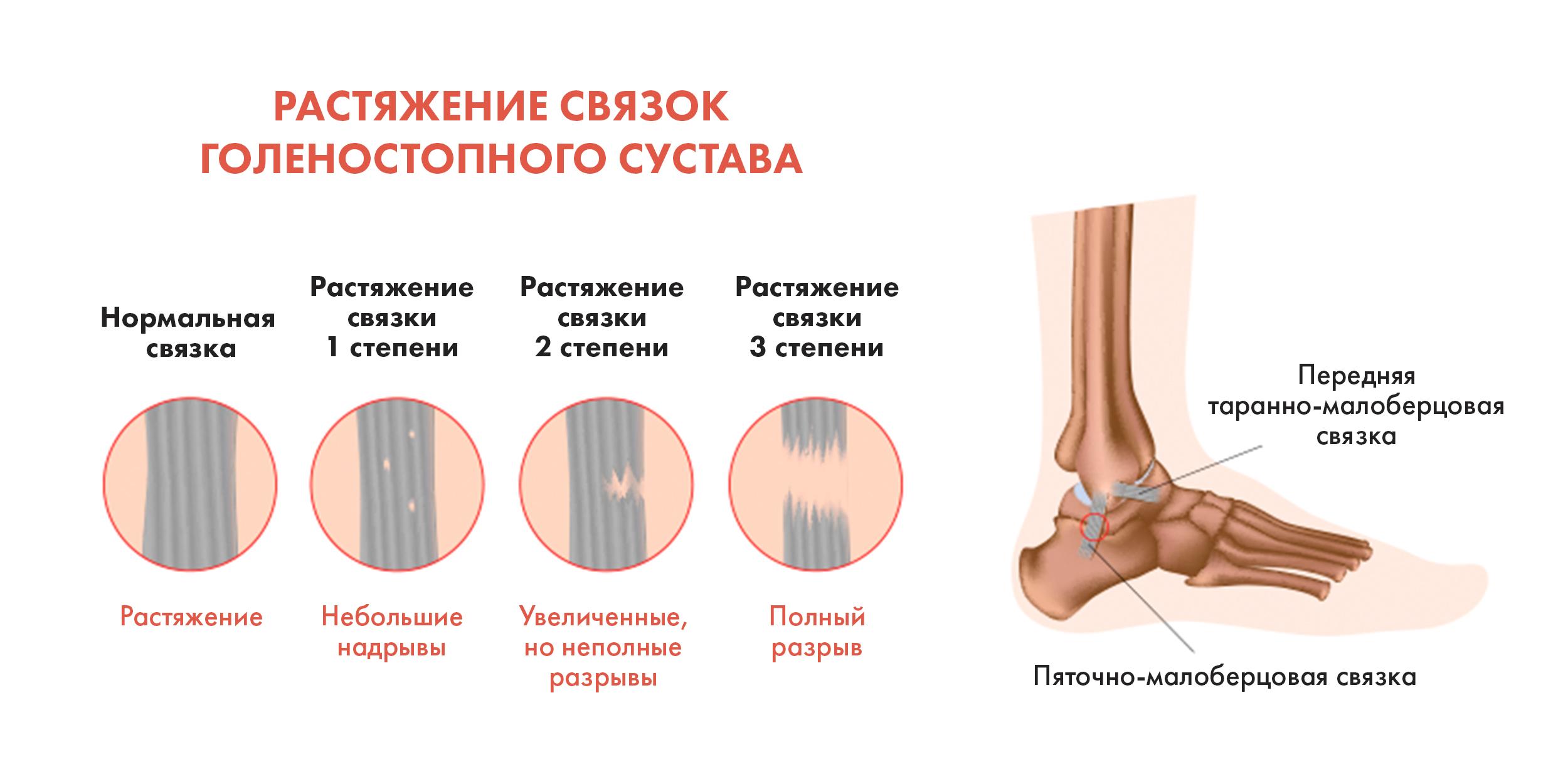 Лечебная физкультура после растяжения локтевого сустава дисплазия тазобедренных суставов у младенца форум