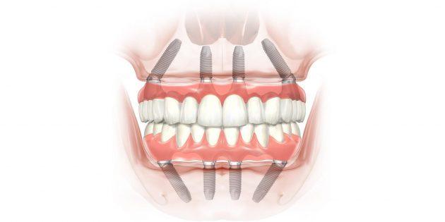Что будет если не вставлять удаленные зубы
