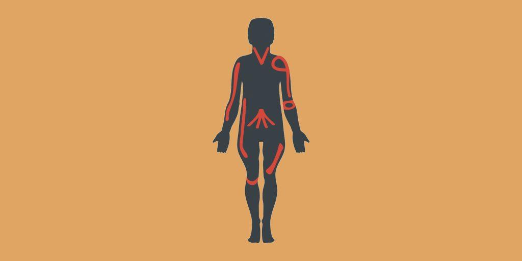 Профилактика травм: как не травмироваться при занятии спортом, особенно кроссфитом