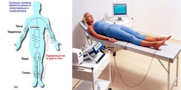 Биоимпедансный анализ тела аппаратом «МЕДАСС»
