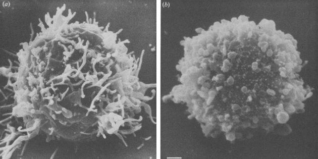 мифы о ВИЧ: больная и здоровая клетка