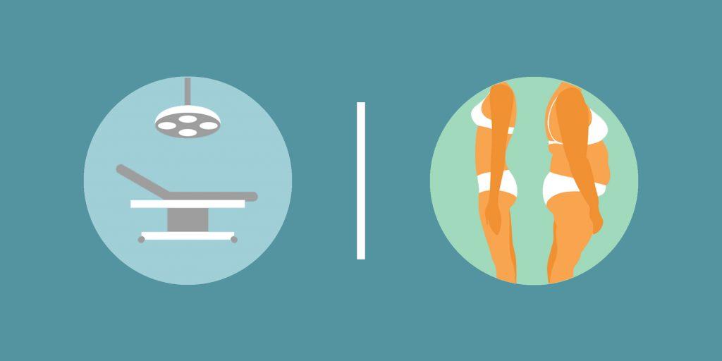 Лазерная липосакция - надежное избавление от жира.