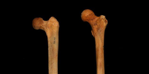глубокий присед: бедренные кости