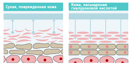 Как действует гиалуроновая кислота