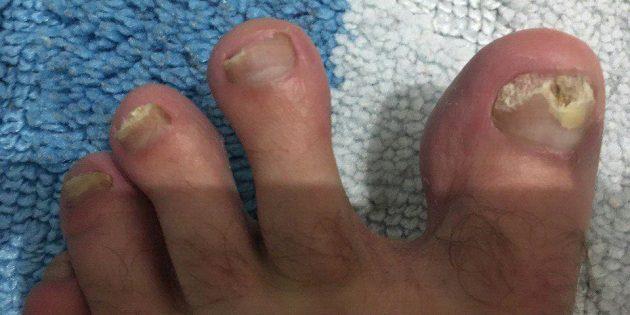 Грибок ногтей, который не лечили