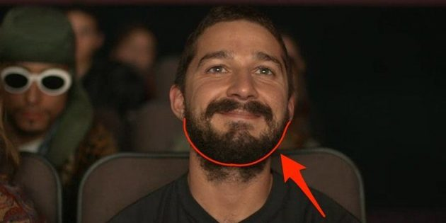 борода на шее: как удалить