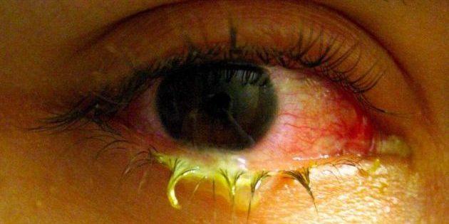 Выделения из глаз при конъюнктивите