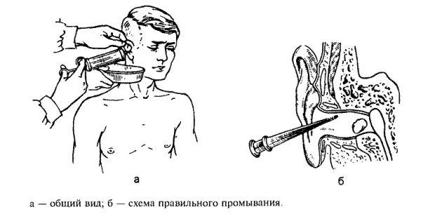 Что делать, если заложило ухо: промывание уха