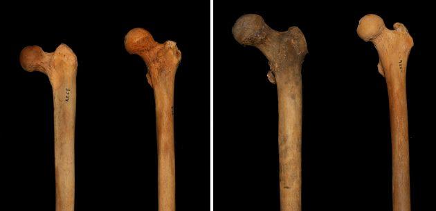 Шейка бедренной кости