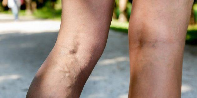 Симптомы и лечение варикоза