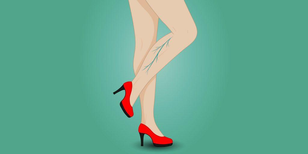 Из-за чего варикоз возникает в области ног