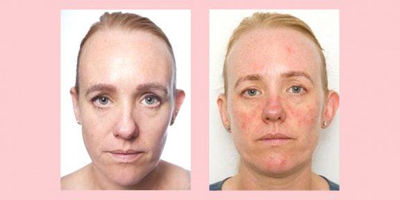 Что будет, если не снимать макияж перед сном