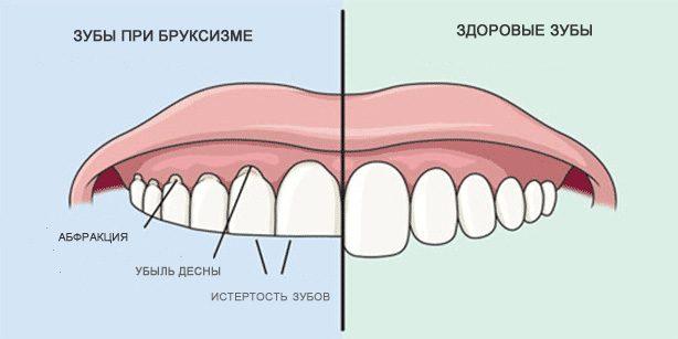 Скрипеть зубами: Здоровые зубы и зубы при бруксизме