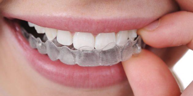 Скрипеть зубами: защитная капа