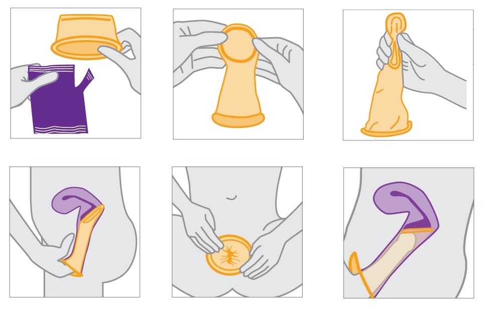 презервативов необязательно использование