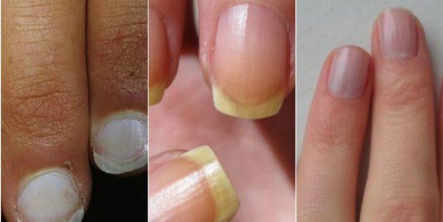 Белые, жёлтые и синеватые ногти