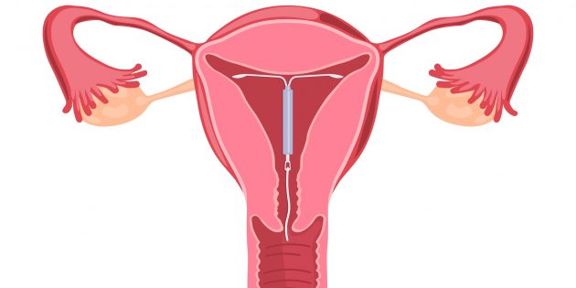 Что такое спираль у женщин