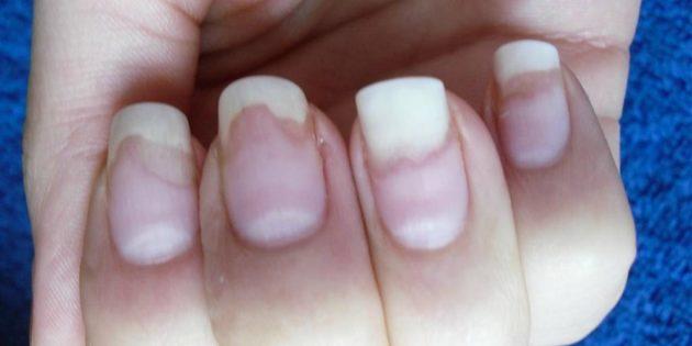 Слоятся ногти. Онихолизис