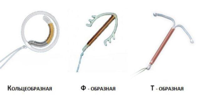 Виды внутриматочных спиралей