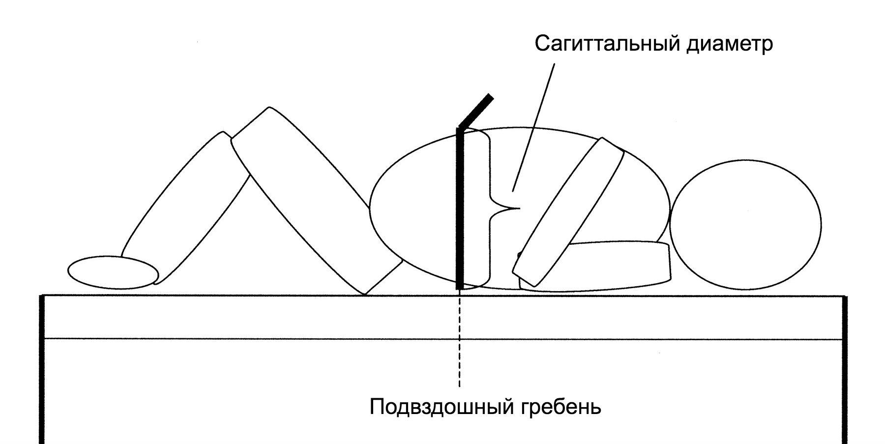 Висцеральный жир. Сагиттальный диаметр