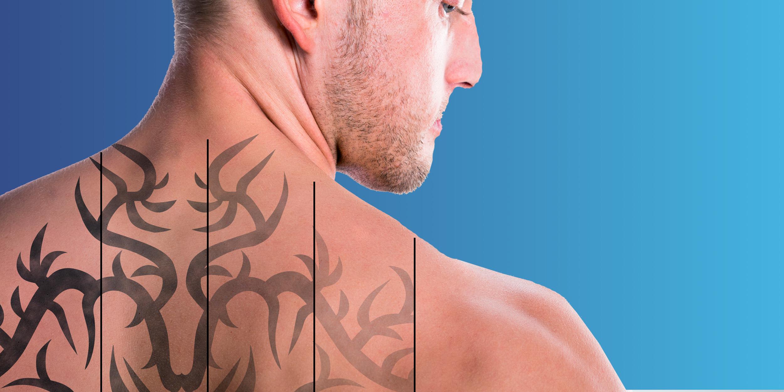 Лазерное удаление татуировки: что стоит знать, прежде чем решиться ...