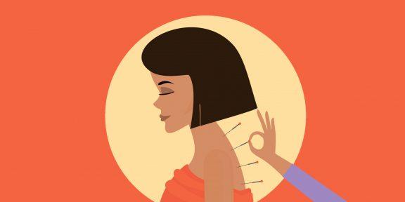 Акупунктура: что стоит знать о лечении тонкими иглами