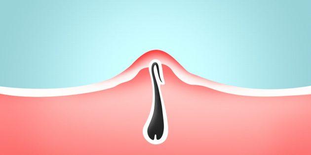 Как избавиться от вросших волос и предотвратить их появление