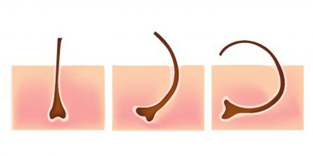 Почему появляются вросшие волосы