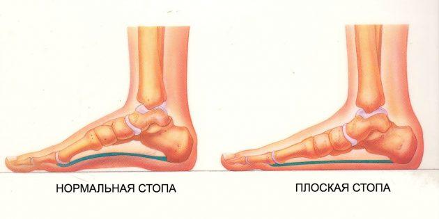 упражнения при плоскостопии: Нормальная и плоская стопы