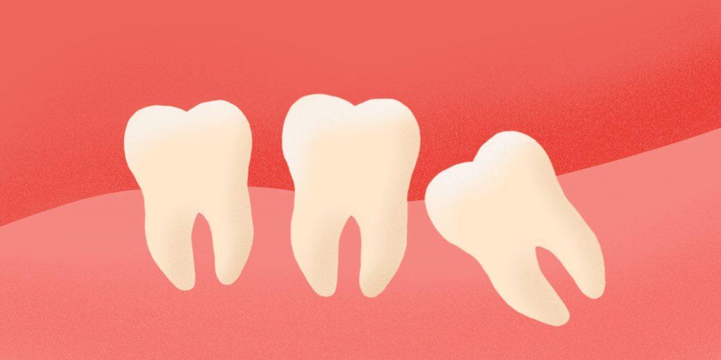 Зубы мудрости двигают другие зубы