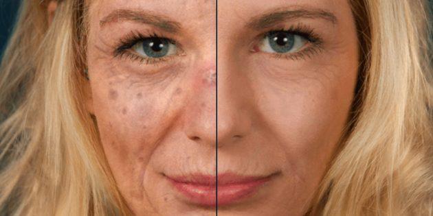 Sunface покажет, что станет с вашей кожей, если не защищать её от солнца
