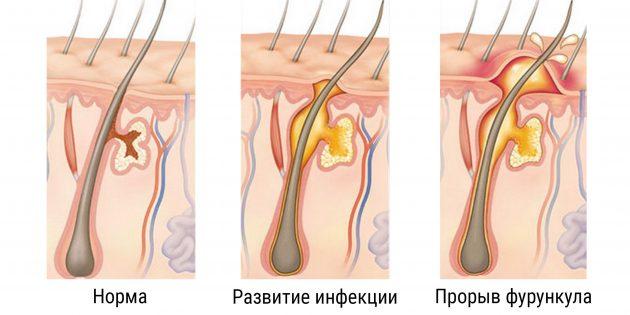 Как развивается фурункул