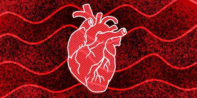 11признаков того, что у вас может случиться остановка сердца