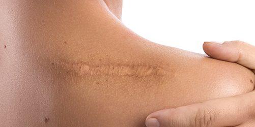 Как убрать шрамы: в рубцовой ткани волокна коллагена всегда располагаются параллельно друг другу