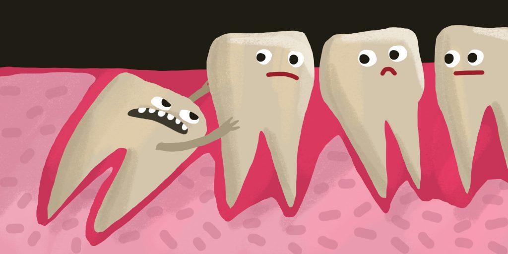 С каким интервалом можно удалять зубы мудрости