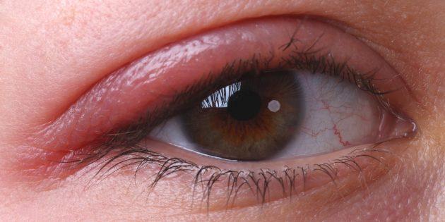 Почему чешутся глаза: блефарит