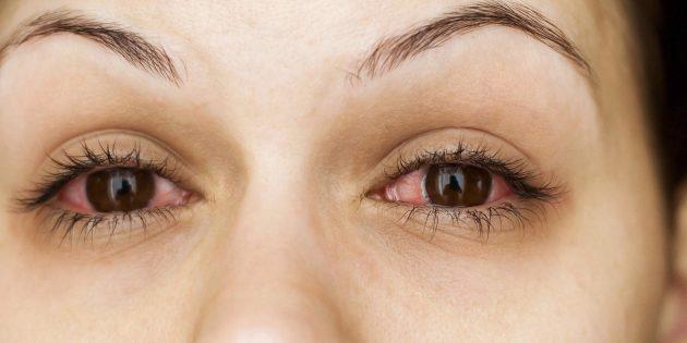Почему чешутся глаза: конъюнктивит