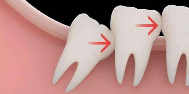 Когда необходимо удаление зуба мудрости
