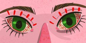 Почему чешутся глаза и что с этим делать