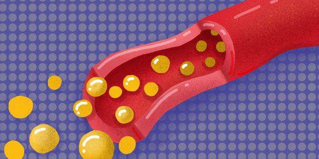 21 ответ на наивные, но важные вопросы о холестерине