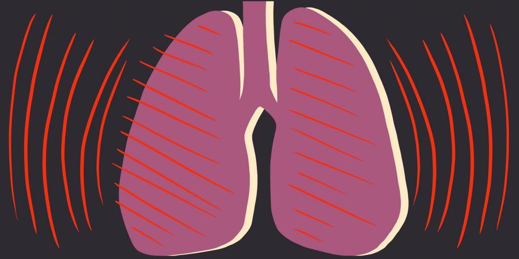 Симптомы и первые признаки туберкулеза легких на ранней стадии у женщин